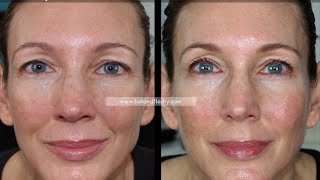 Retin-A for Anti-Aging   3-Year Results   Before & After
