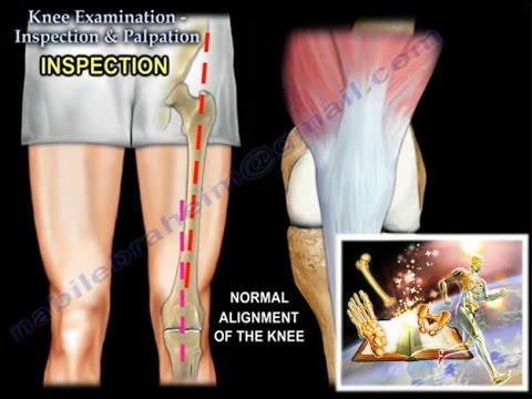 Knee examination inspection palpation everything you need to knee examination inspection palpation everything you need to know dr nabil ebraheim youtube ccuart Images