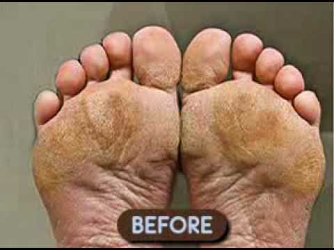 Baby Foot Peel Instructions