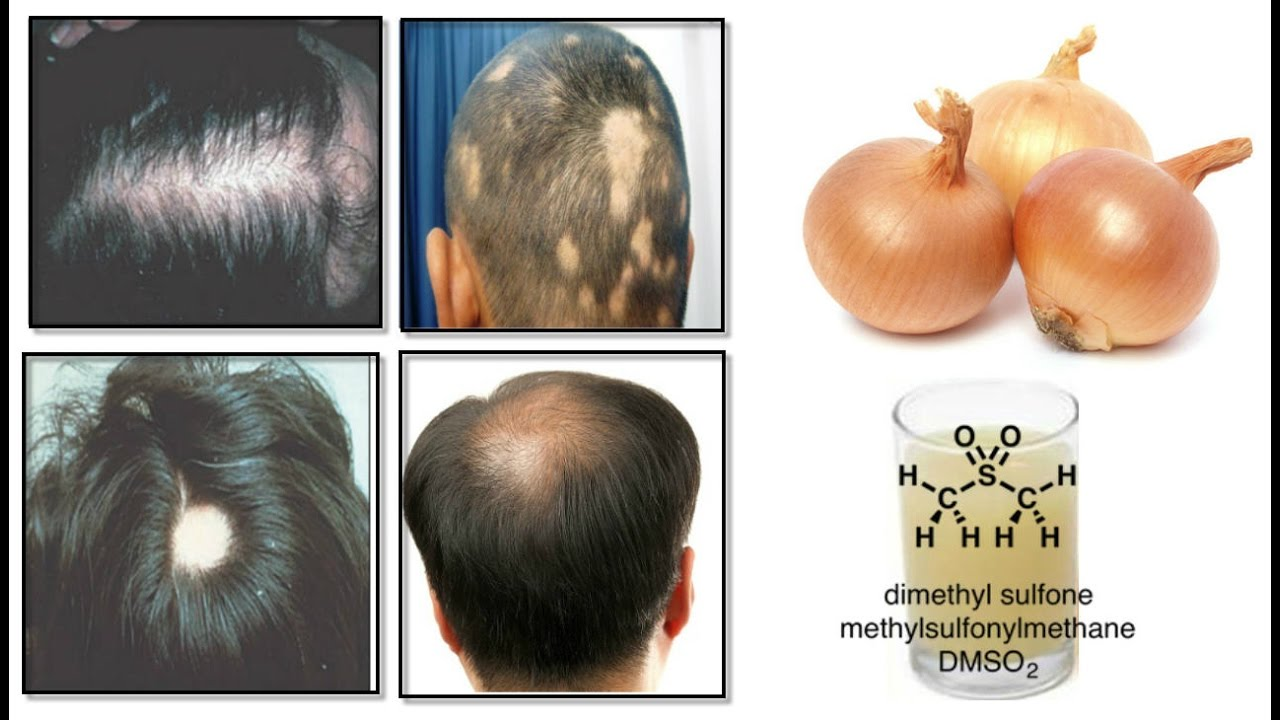 Onion Juice Cure Hair Loss And Promote Regrowth 100 Natural In Hindi You