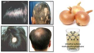 Onion Juice Cure Hair Loss And Promote Hair Regrowth Natural Hindi