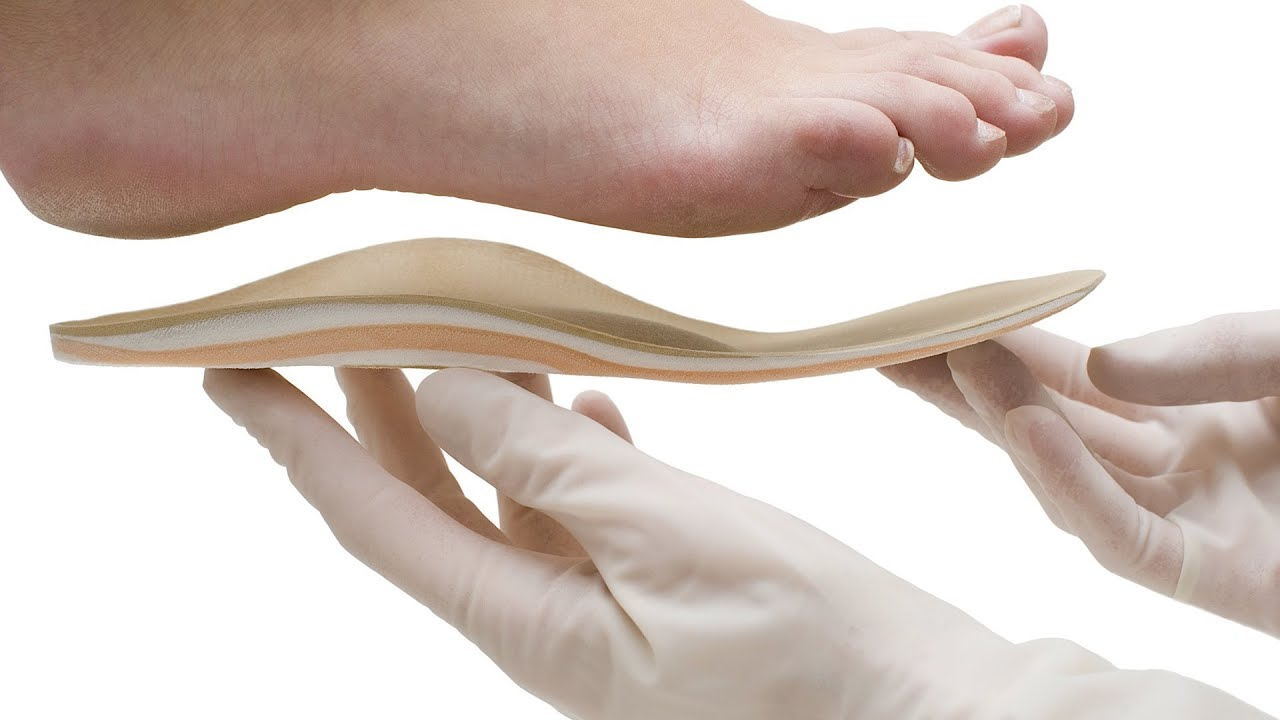 How to cure flat feet 14