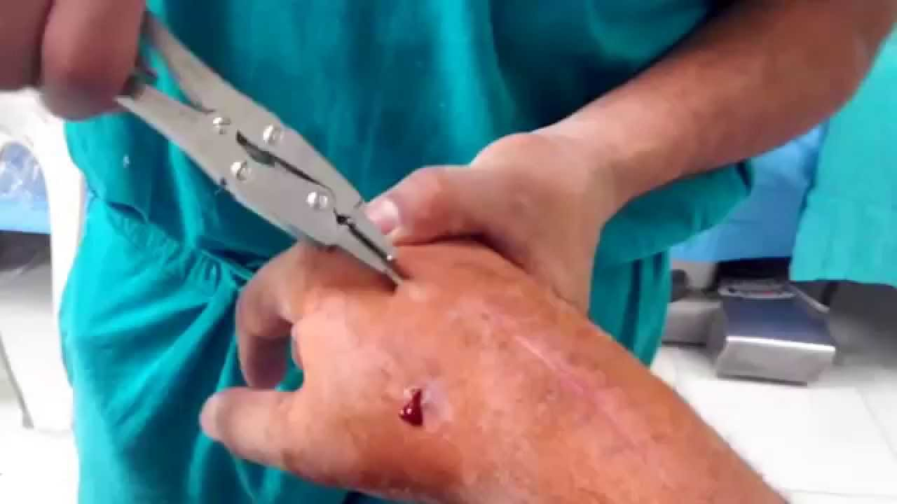 k-wire removal , wrist - YouTube