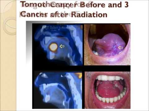 Radiation for Head and Neck Cancer