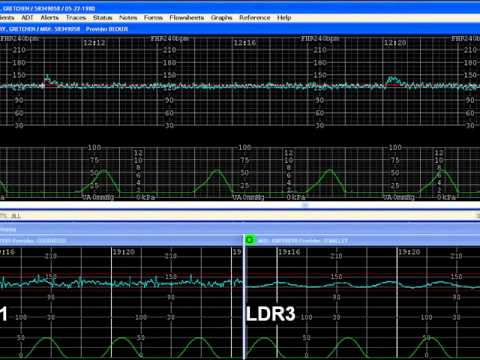 E Tools Demo : OBIX Perinatal Data System by Clinical Computer Systems INC. (CCSI)