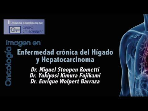 Enfermedad Crónica del Hígado y Hepatocarcinoma