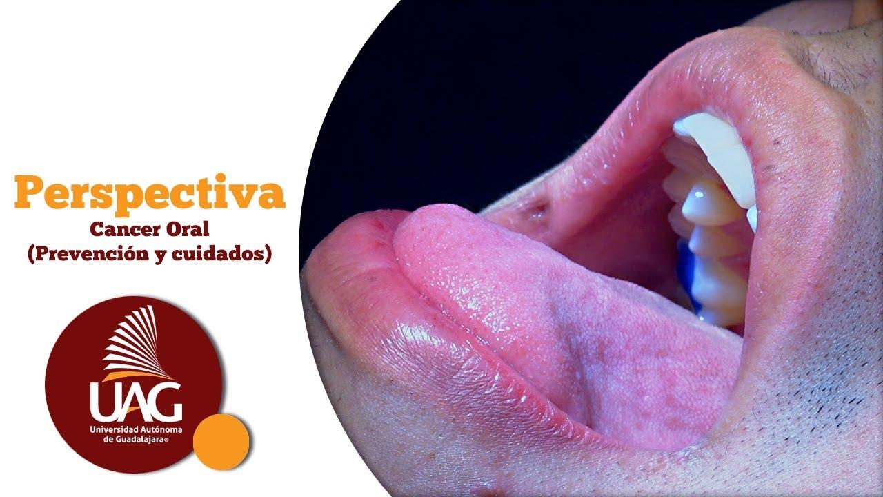 cancer bucal stadiul 4 gel de îndepărtare a verucilor genitale