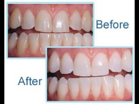 Quick Teeth Whitening At Home Diy Whiter Teeth Guaranteed Teeth