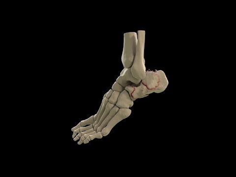 3D Volumetric Rendering of Calcaneus Fractures