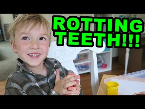 Rotting Teeth
