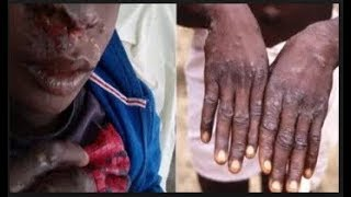 Breaking: Six new cases of Monkeypox confirmed in Nigeria