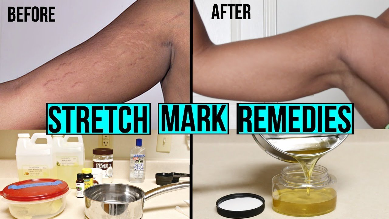 How To Get Rid Of Stretch Marks Scars Diy At Home Stretch Mark