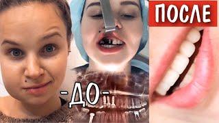 Моя страшная история зубов /Импланты, Коронки, Виниры