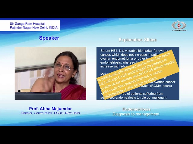 Scientific Discussion Endometriosis Diagnosis to Management By Prof. Abha Majumdar Director Centre