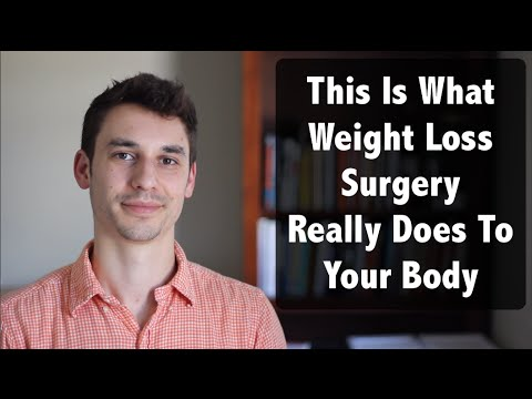 This Is What Happens When You Get Weight Loss Surgery (Run Away!…)