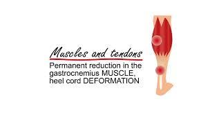 High heels and our disease | MET DAAN
