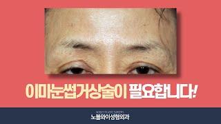 중년눈성형 중 눈꺼풀처짐 및 이마주름을 동시에 개선하는…