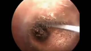 ушные болезни. Серная пробка, инородное тело в ушном походе.