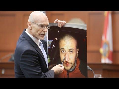 DNA Evidence Against Zimmerman