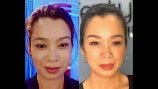 Download DJ Toni Aquino Testimony after her Dermal Fillers
