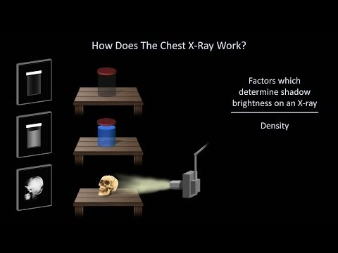 How to Interpret a Chest X-Ray (Lesson 1 - An Introduction)