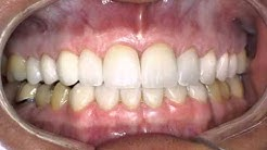 Dental Patient Education   Veneers