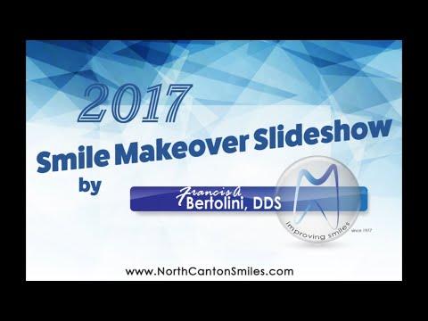 Smile Slideshow 2017