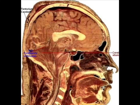 Brain Sagittal labeled Views in slow animation by Dr Sanjoy Sanyal ...