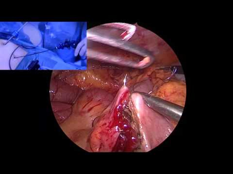 Percutaneous  Laparoscopic Right Colectomy + Trasvaginal Extraction
