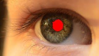 ☢ בול פגיעה - למה העיניים של נכד האדמו