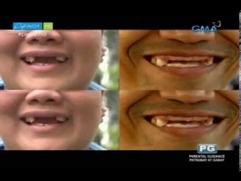 Say goodbye to incomplete smile with dentures | Pinoy MD