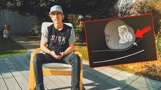 Why I didn't post new videos! Red Bull Rampage? - Q&A Fabio Wibmer