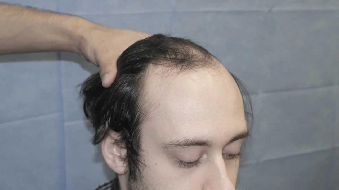 Propecia hairline