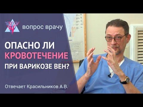 Кровотечение расширенной вены при варикозе