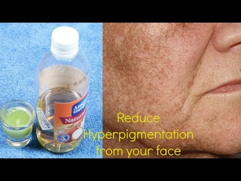 how-to-remove-hyper-pigmentation-from-your-face-in-hindi