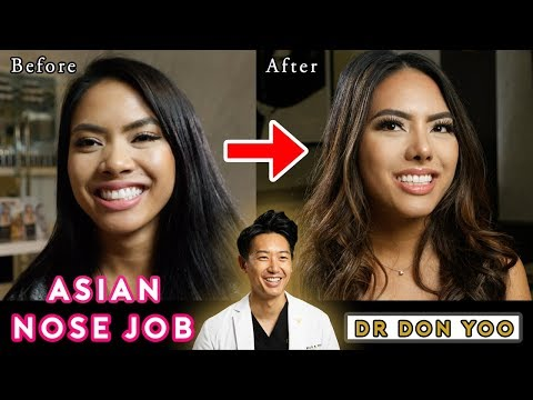 asian-rhinoplasty-|-asian-nose-job-|-pretty-to-prettier®---beverly-hills