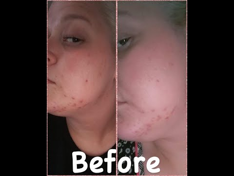 natural-acne-treatment---daily-routine!-like/sub
