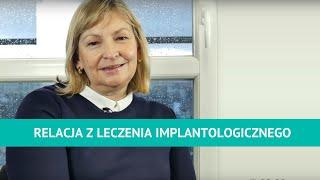 Jolanta Skrzypczyk - relacja z leczenia metodą Zęby w 1 dzień w Dentim Clinic