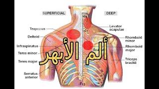 ماهو ألم الأبهر ( الألم بين الأكتاف)) وما علاجه والوقاية منه؟؟؟؟