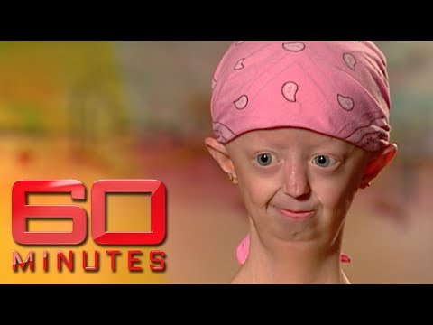 Extraordinary Hayley Okines on living with a rare ageing disease | 60 Minutes Australia