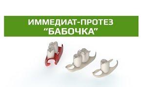Съемные зубные протезы: иммедиат- протез