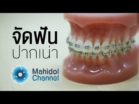 คลิป MU [by Mahidol]  จัดฟัน ปากเน่า ดัดฟันแฟชั่น อันตรายหมอฟันเถื่อน คนเราจำเป็นต้องจัดฟันจริงหรือ