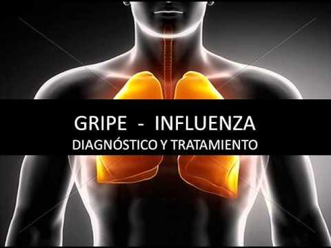 Gripe – Influenza – Diagnóstico y tratamiento