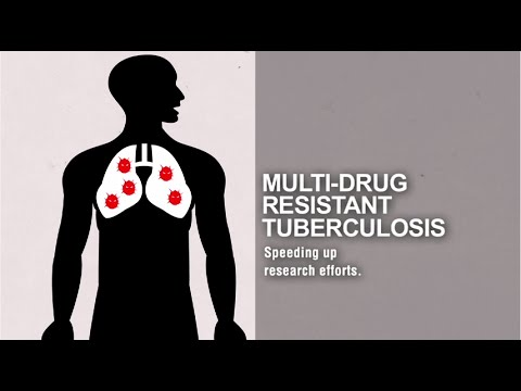 MDR-TB: Speeding up research efforts