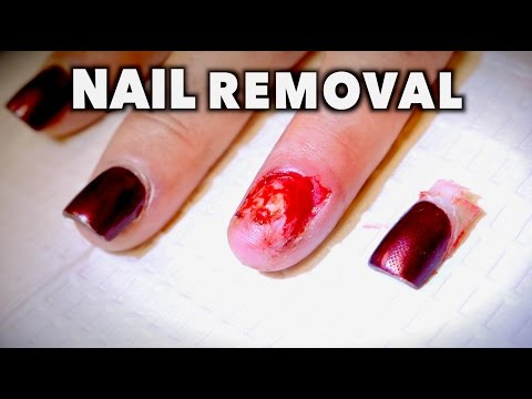 REMOVING MY WIFES FINGERNAIL...AGAIN! (Yikes) | Dr. Paul