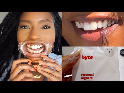 Fixing my TEETH!! Affordable Aligners to Straighten Teeth| M