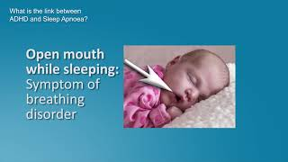 Dr. tony o'connor discusses this serious condition which can have a major impact on the health of children. he explains what causes obstructive sleep apnoea ...