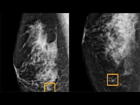 Google AI detects breast cancer better than doctors: study