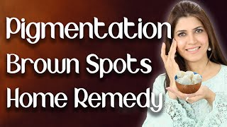 How to Remove Pigmentation / Freckles / Brown Spots / Melasma / Home Remedy  - Ghazal Siddique
