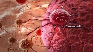 Tin Hót :Nga tuyên bố tìm ra thuốc chữa mọi bệnh ung thư.